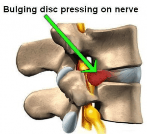 bulging-back-pain-disc-nerve-physiotherapy